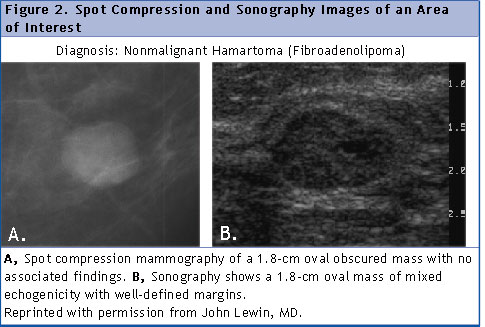tomosynthesis rafferty 2008 Recently, tomosynthesis has evolved as an advanced imaging investigation for early diagnosis of  a study done by rafferty revealed that diagnostic sensitivity and positive predictive values  eur radiol 200818:2817-25.