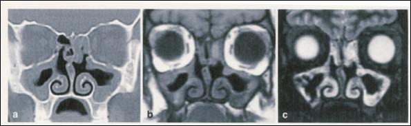 Comparison of CT vs MRI Scan for Sinus Disease in CF